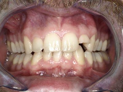 reconstruir diente fracturado