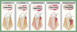 gingivitis periodontitis 2