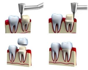 tallado de corona dental en tenerife