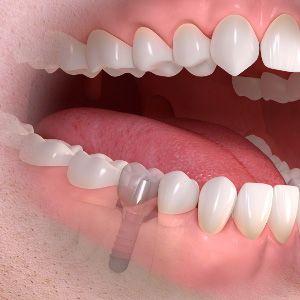 implantes dentales en santa cruz de tenerife