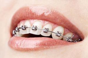 ortodoncia convencional en santa cruz de tenerife