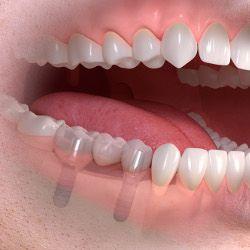 perdida varios dientes en tenerife