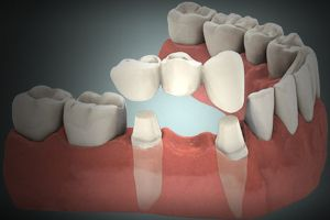 puente protesico dental en tenerife