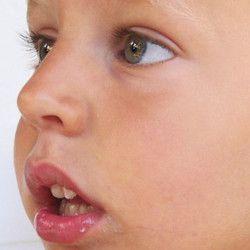 malos habitos perjudiciales para los dientes respiracion oral