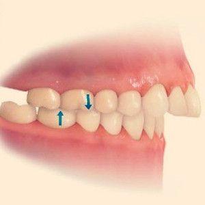 manias perjudiciales para los dientes interposicion labial