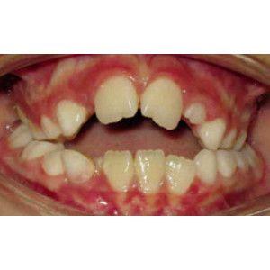 manias perjudiciales que afectan a los dientes deglucion infantil