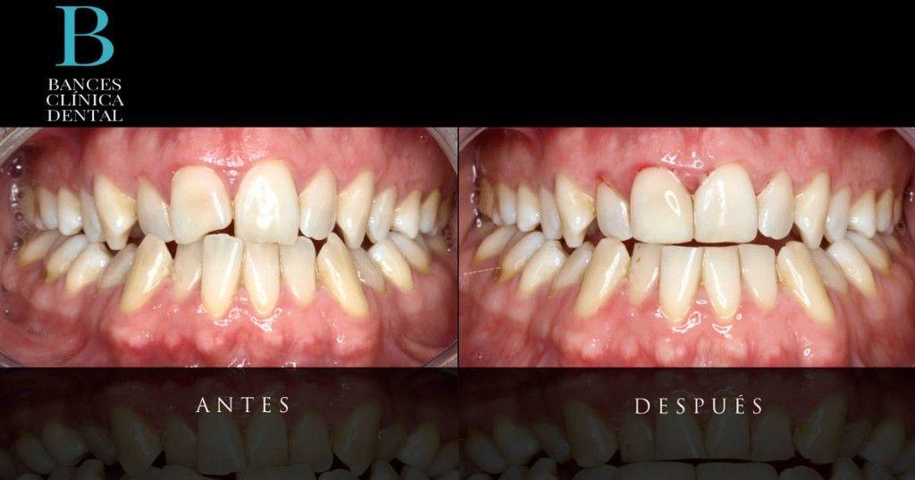 tratamientos de estética dental indoloros