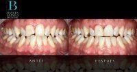 tratamientos de estetica dental indoloros