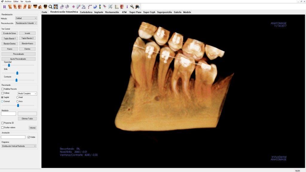radiografia para ortodoncia