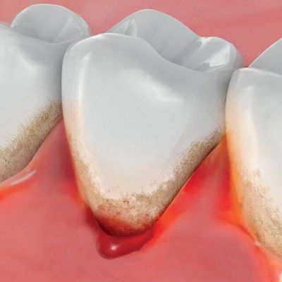 Sangrado de encías - Dentista en Tenerife