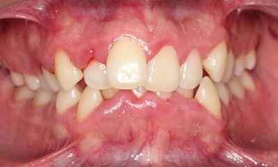 Tratamiento para la Gingivitis y Periodontitis en Tenerife