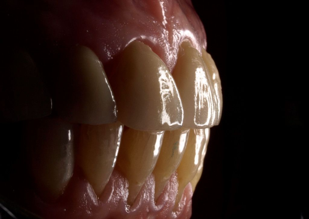 Carillas de porcelana - Estética dental