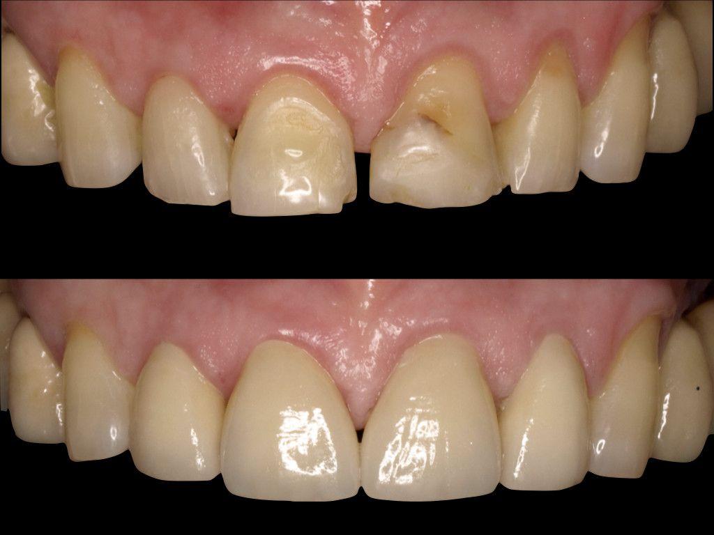 Tratamiento de Carillas dentales - Resultados