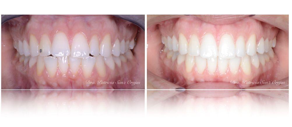 Ortodoncia con Invisaling - Clínica Bances