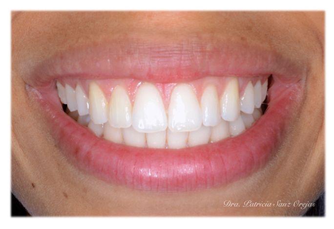 Caso clínico Ortodoncia Invisible - Resultado final