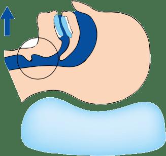 Tratamiento para apnea del sueño en adultos