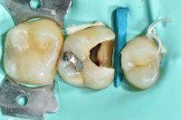 Hacer una endodoncia en Tenerife