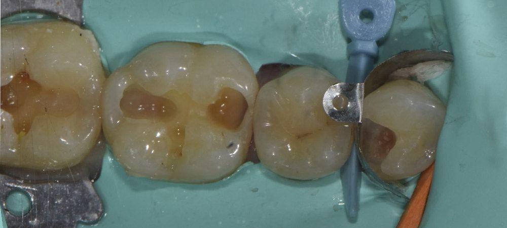Realización de la endodoncia